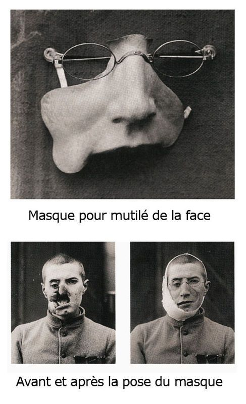 facial-masks-plastic-surgery